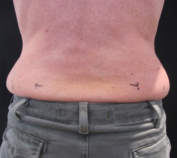 A lady before having CoolSculpting (Fat freezing) on her muffin top