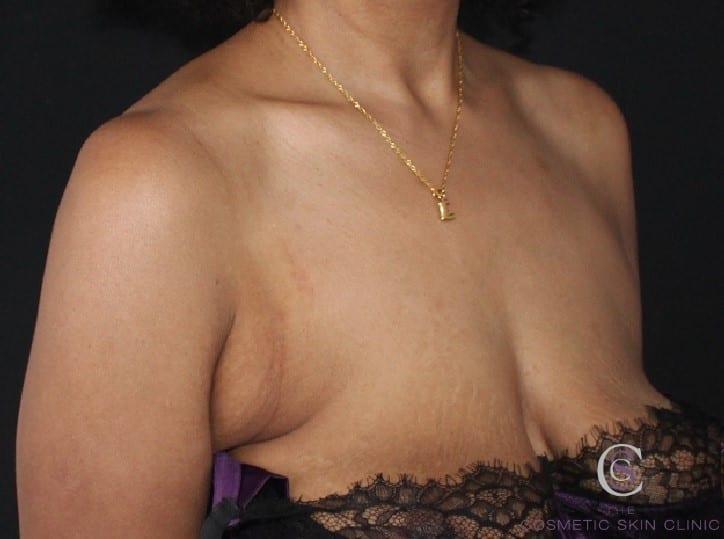 CoolSculpting Bra Fat Treatment - Before - CSC