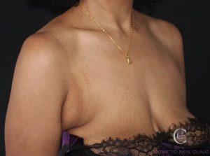 CoolSculpting Bra fat armpit fat removal before