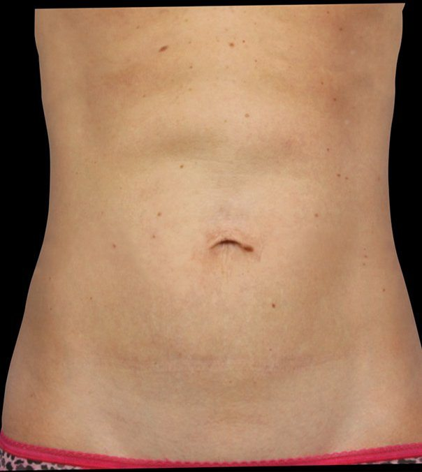 A flat stomach following CoolSculpting to the abdomen
