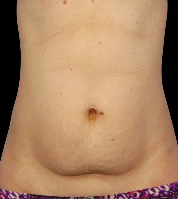 Before CoolSculpting treatment on abdomen by Dr Grant Stevens