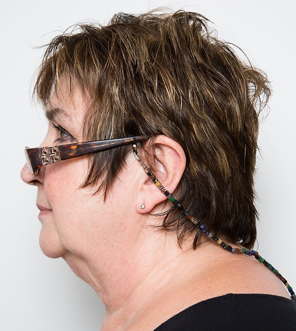 Jenni Murray before having CoolSculpting to submental (double chin)