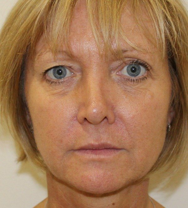 A lady following collagen stimulating treatment and thread lifting to jaw line and mid face