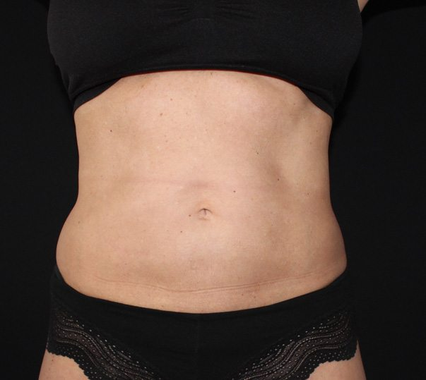 Stomach after CoolSculpting