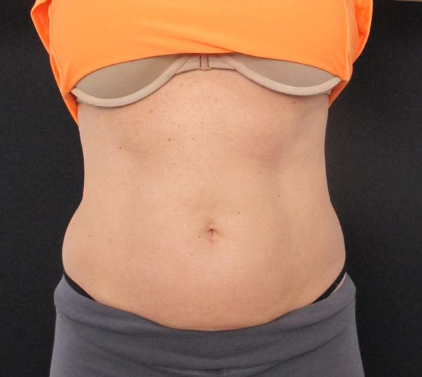 Stomach before CoolSculpting