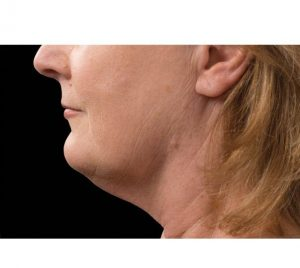 Double Chin Fat Removal After