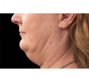 Double Chin Fat Removal Before