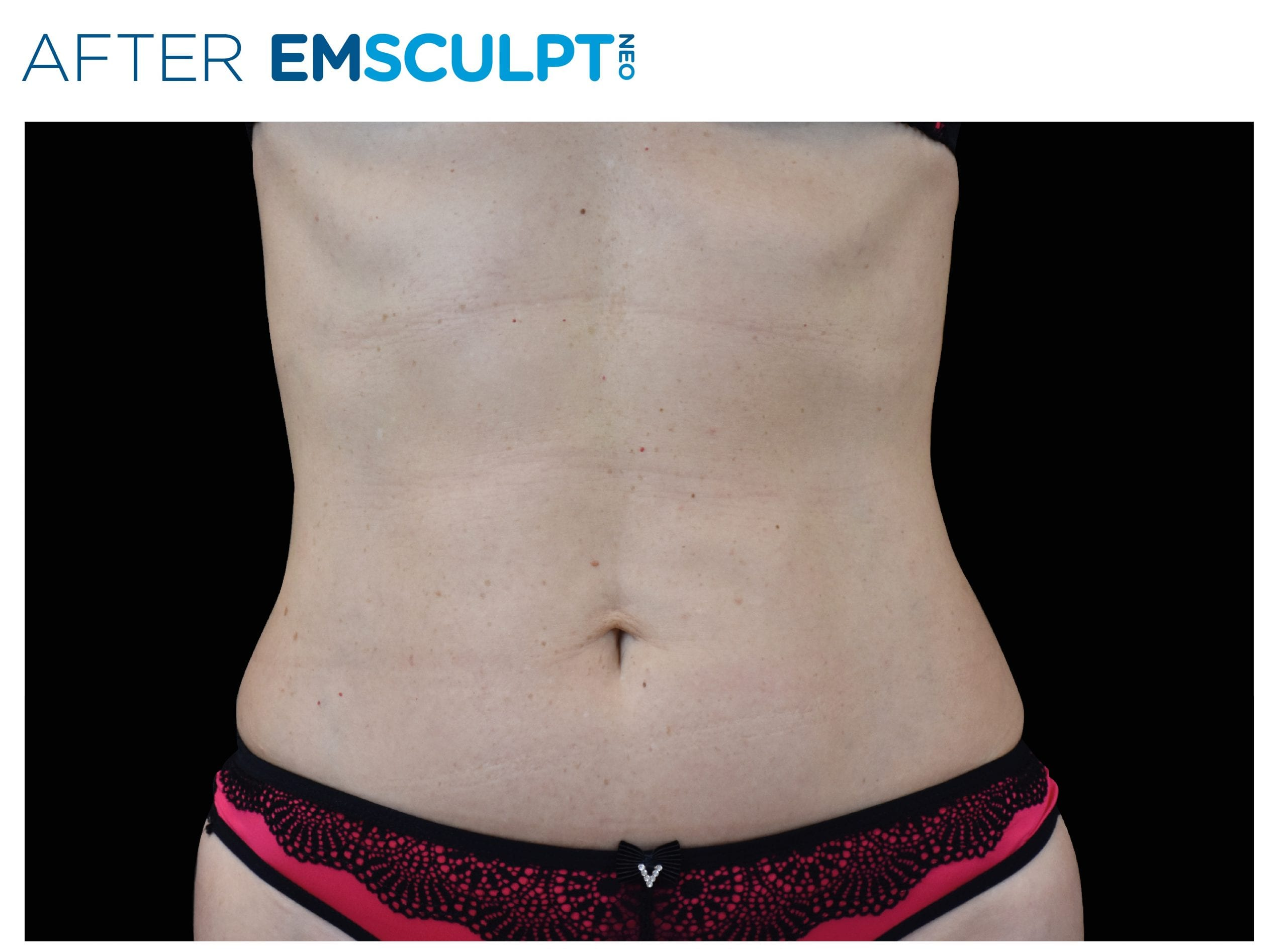 EMsculpt Neo After Treatment photo woman