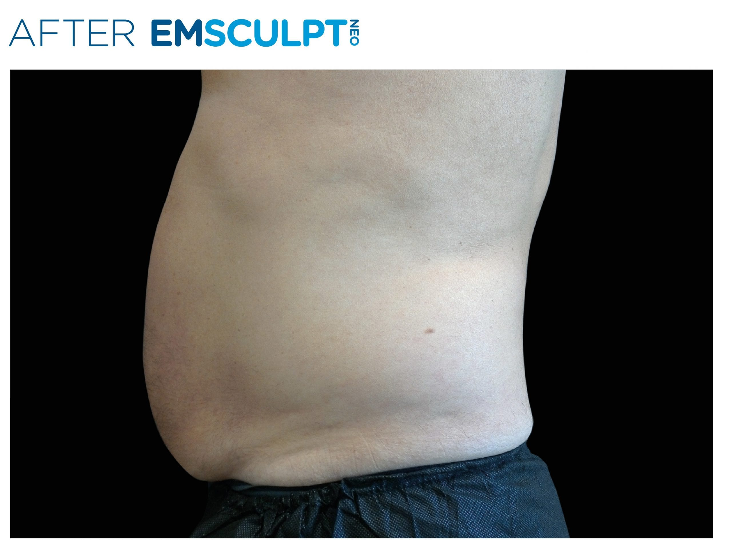 EMSculpt Neo After Treatment photo man