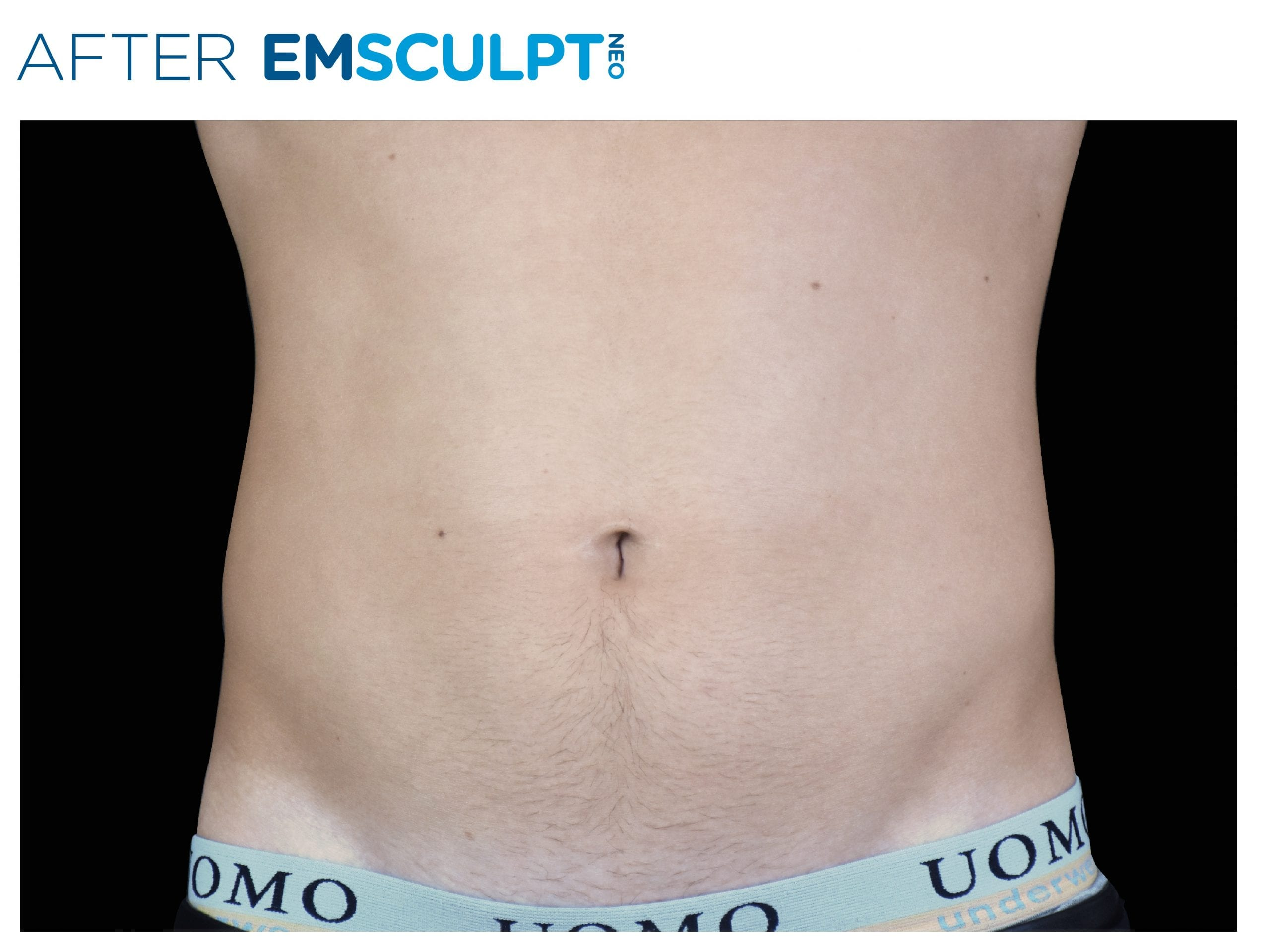 Emsculpt Neo Treatment After picture man's belly