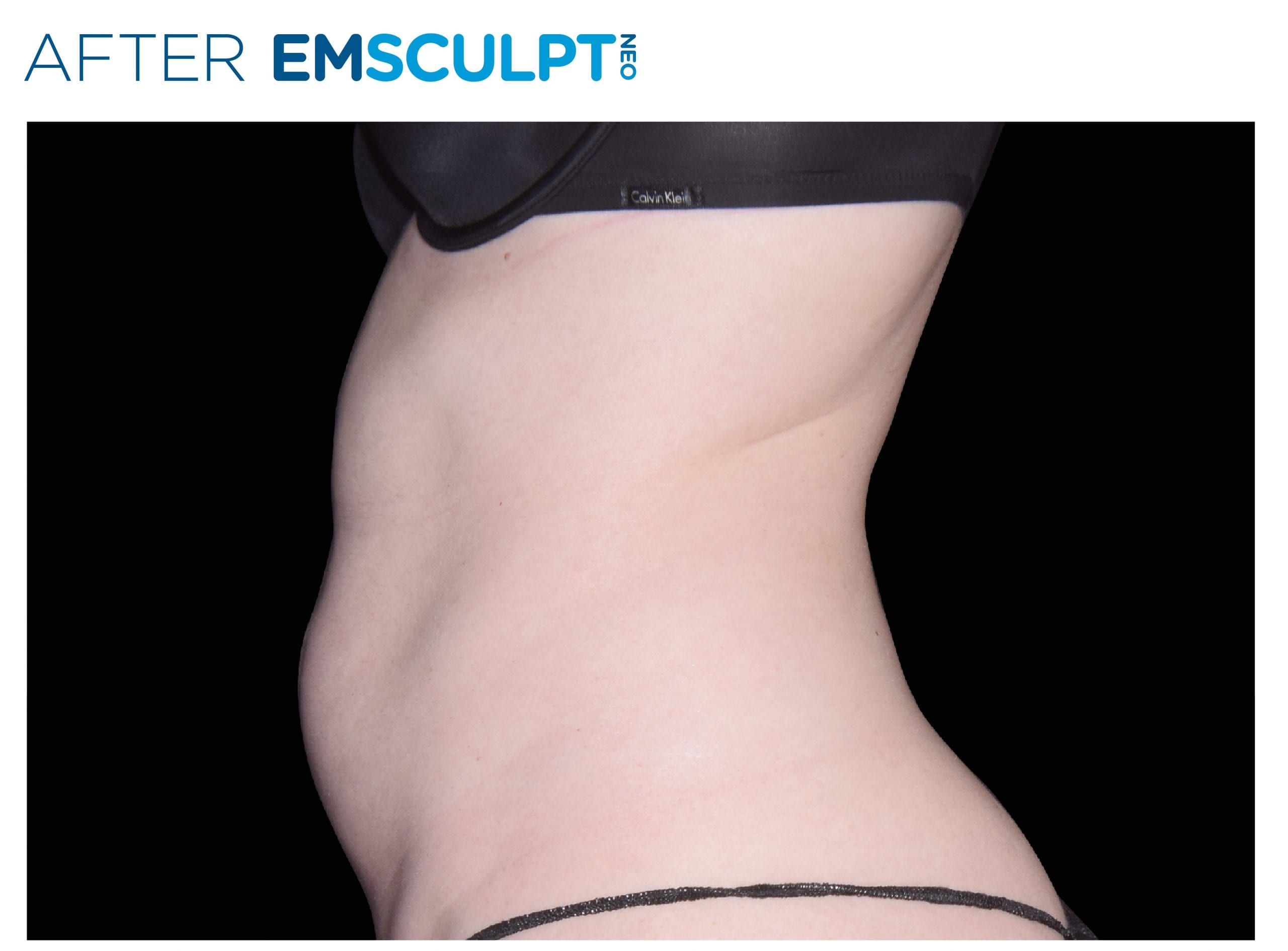 Emsculpt Neo After Treatment photo woman side view