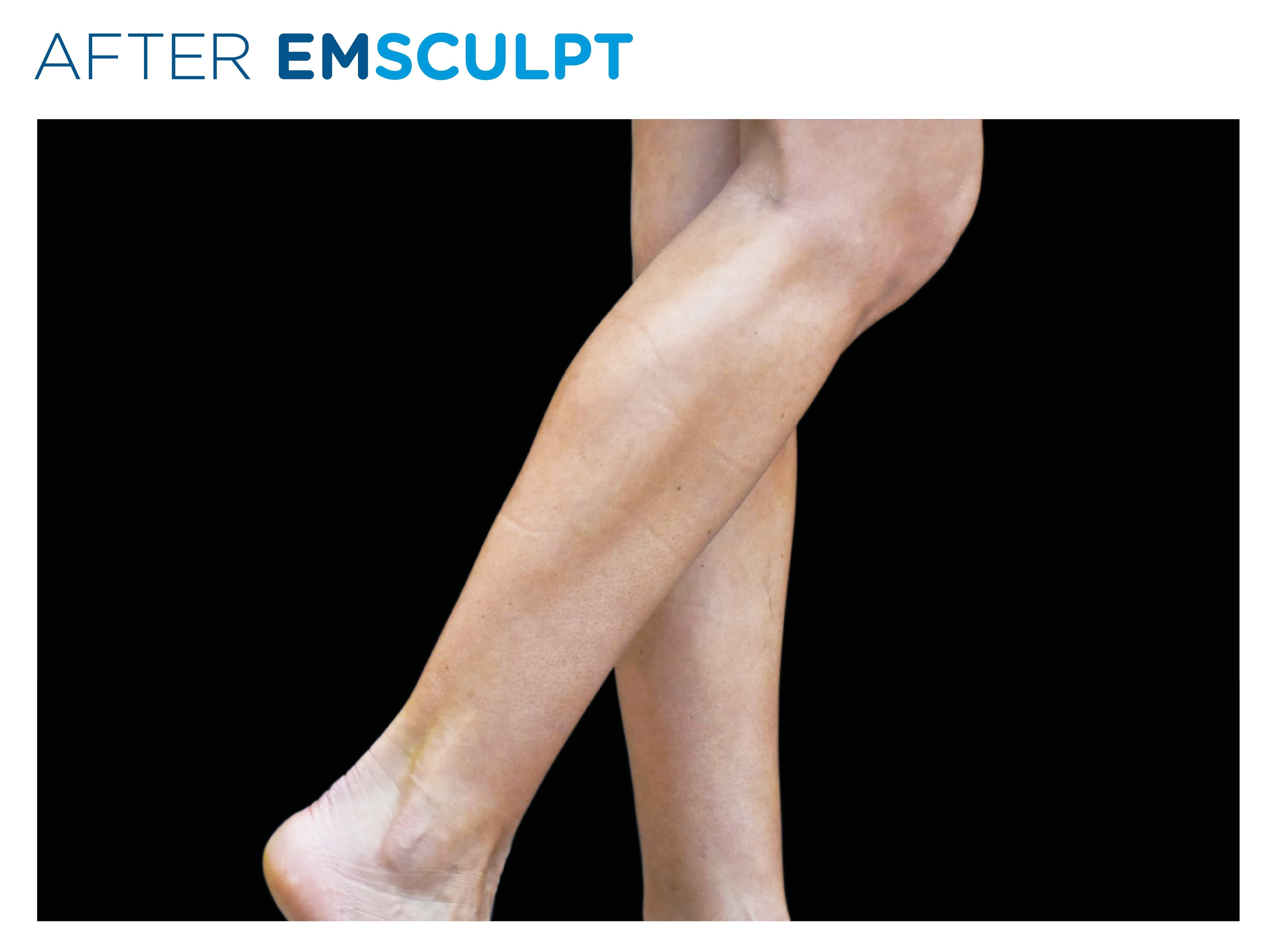 EMSculpt in London