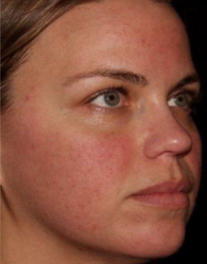 Fractional Laser skin resurfacing rosacea after