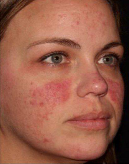 Fractional Laser skin resurfacing rosacea before