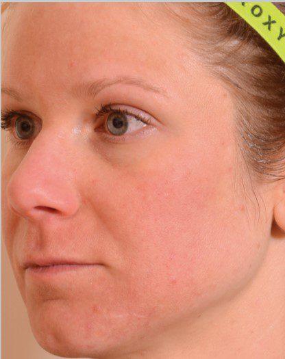 Fractional laser sun damaged skin after