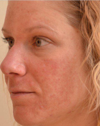 Fractional laser sun damaged skin before