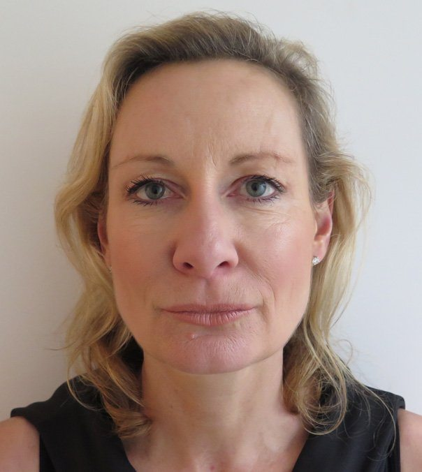 A lady after having her jaw line and mid-face lifted using Silhouette Soft Thread Lifts.