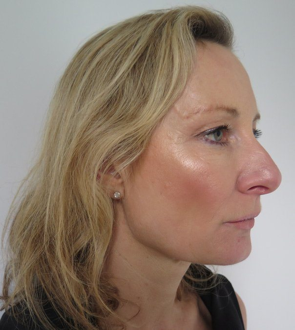 A side view of the face of a lady who has had Silhouette Soft Thread Lifts to tighten her jaw line and mid-face