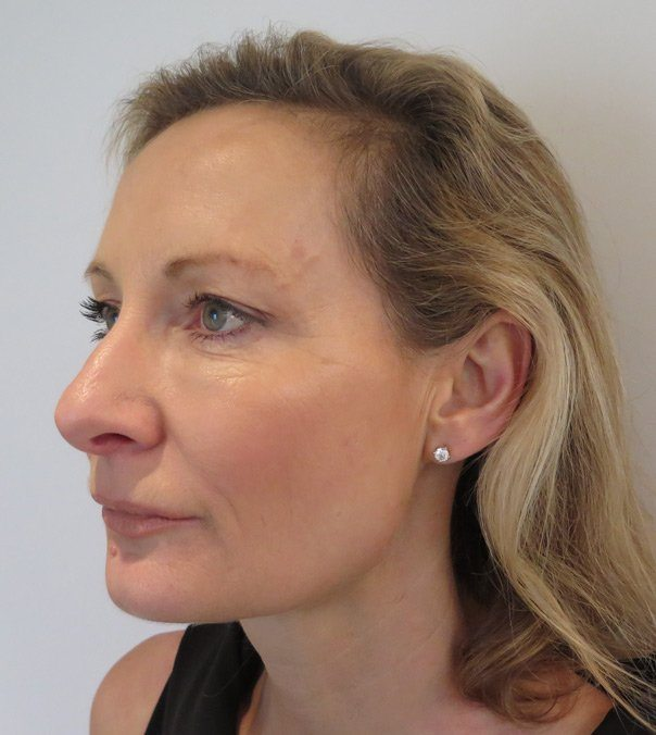 Profile view of a lady after undergoing Silhouette Soft Thread Lift treatment to her jaw line and mid face area