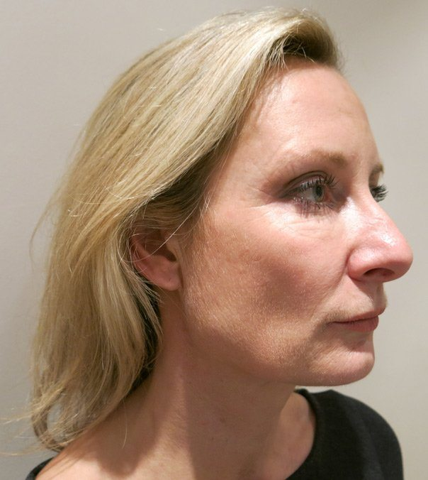Side view of a lady before having Silhouette Soft Threads to her jaw line and mid-face area.