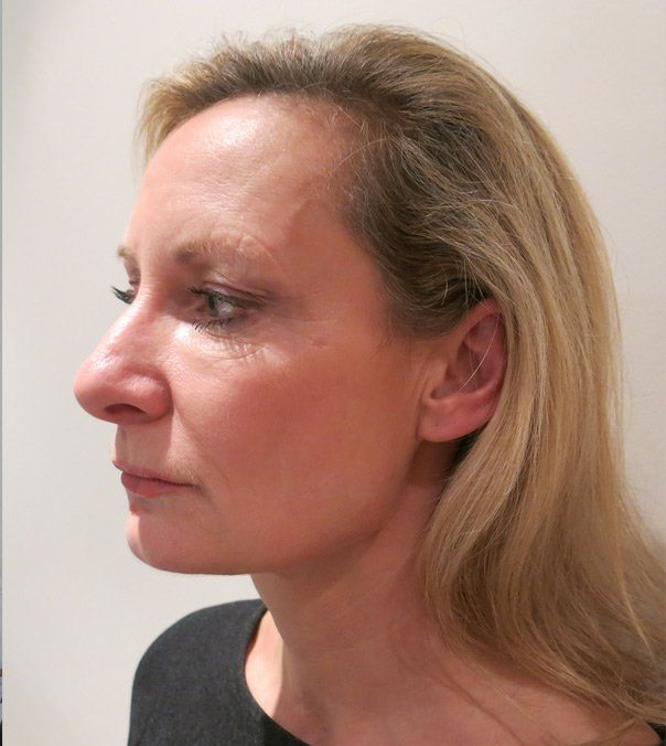 Profile view of a lady before having Silhouette Soft Thread Lifts to tighten her jaw line and mid-face