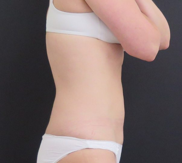 A lady's abdomen after CoolSculpting treatment