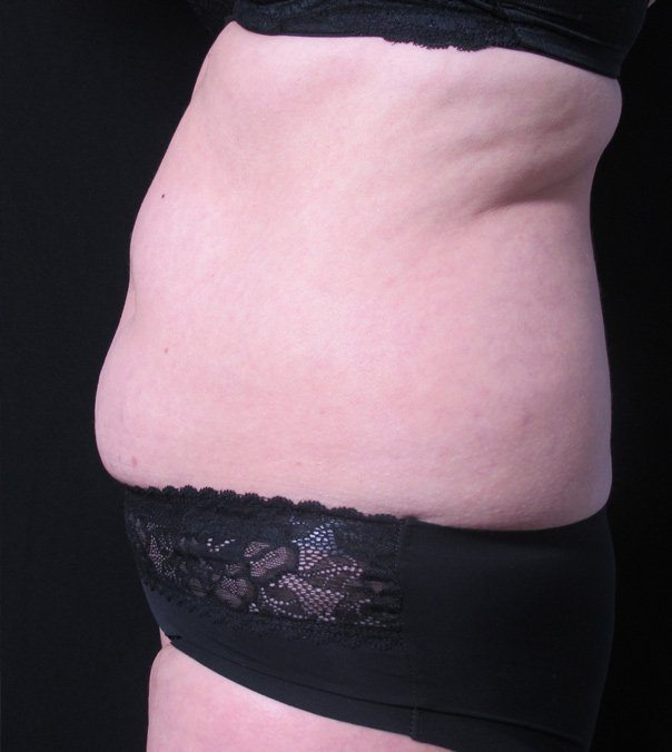 A lady before undergoing CoolSculpting treatment on her abdomen, back fat and flanks
