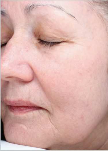 Laser Resurfacing Skin with Halo after