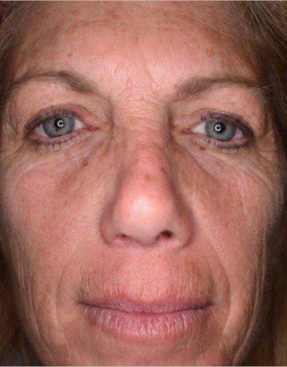 Laser Skin Resurfacing Halo Before
