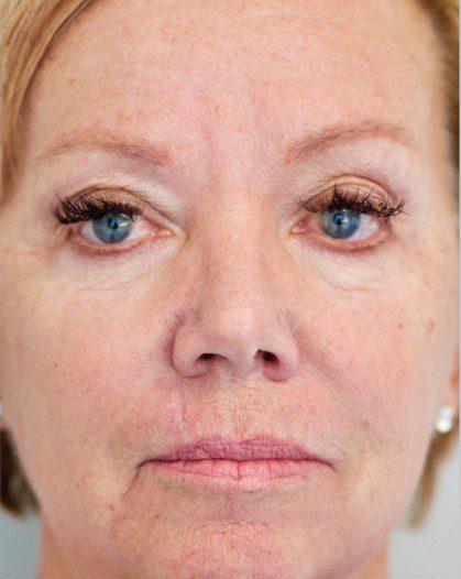 Laser Skin Resurfacing after