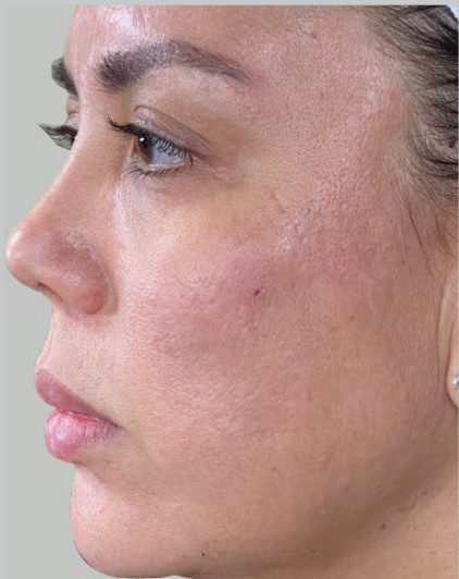 Laser Skin Resurfacing for Large Pores Halo Fractional Laser after