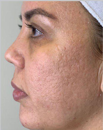 Laser Skin Resurfacing for Large Pores Halo Fractional Laser before