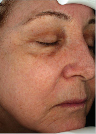 Laser Skin Resurfacing with Halo after