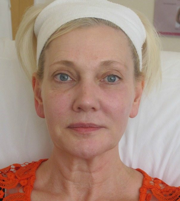 A lady following full face rejuvenation with dermal fillers