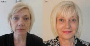 Maxine Caulfield Anti Ageing Treatment Before and After