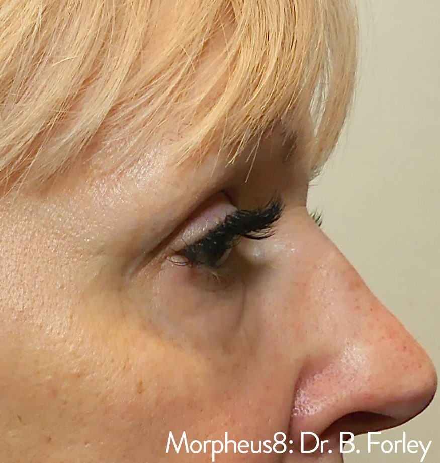 Morpheus8 eye wrinkles after