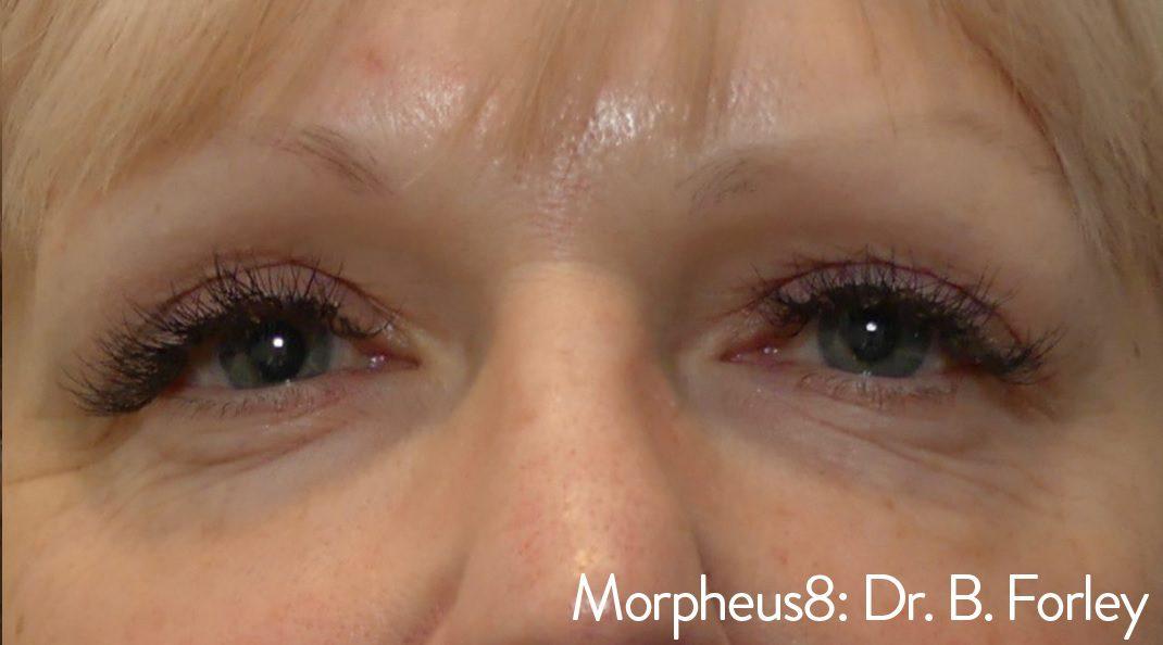Morpheus8 eye wrinkles bags under eyes after