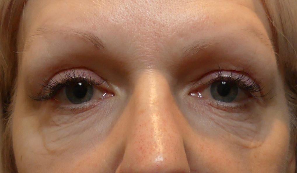 Morpheus8 eye wrinkles bags under eyes before