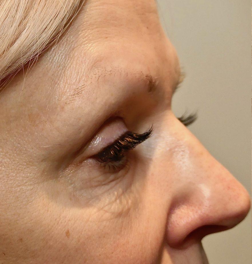 Morpheus8 eye wrinkles before