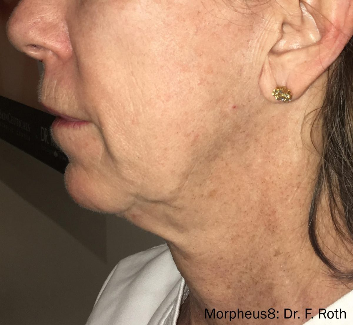 Morpheus8 face and neck wrinkles after