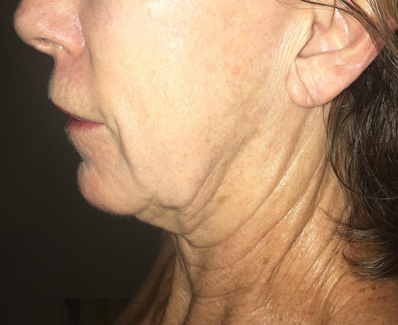 Morpheus8 face and neck wrinkles before