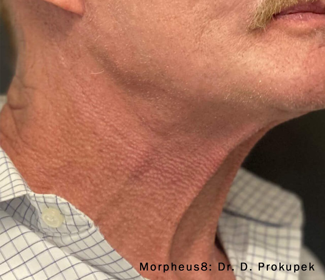 Morpheus8 neck and jawline after