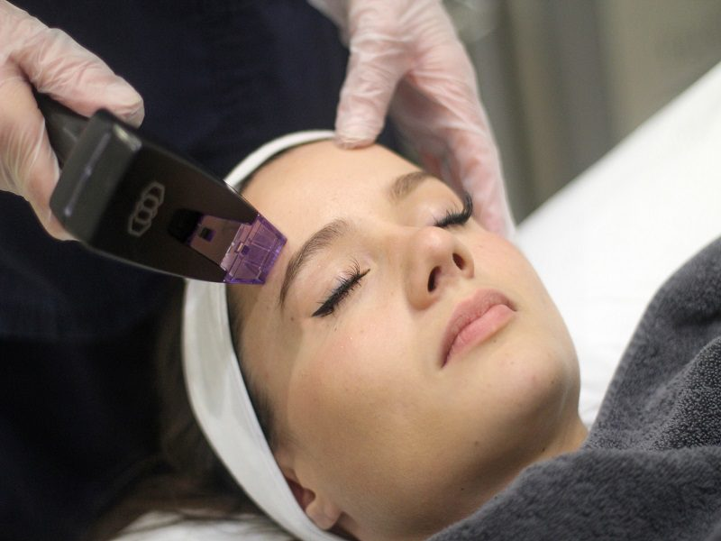 Morpheus8 non surgical face lift - The Cosmetic Skin Clinic London