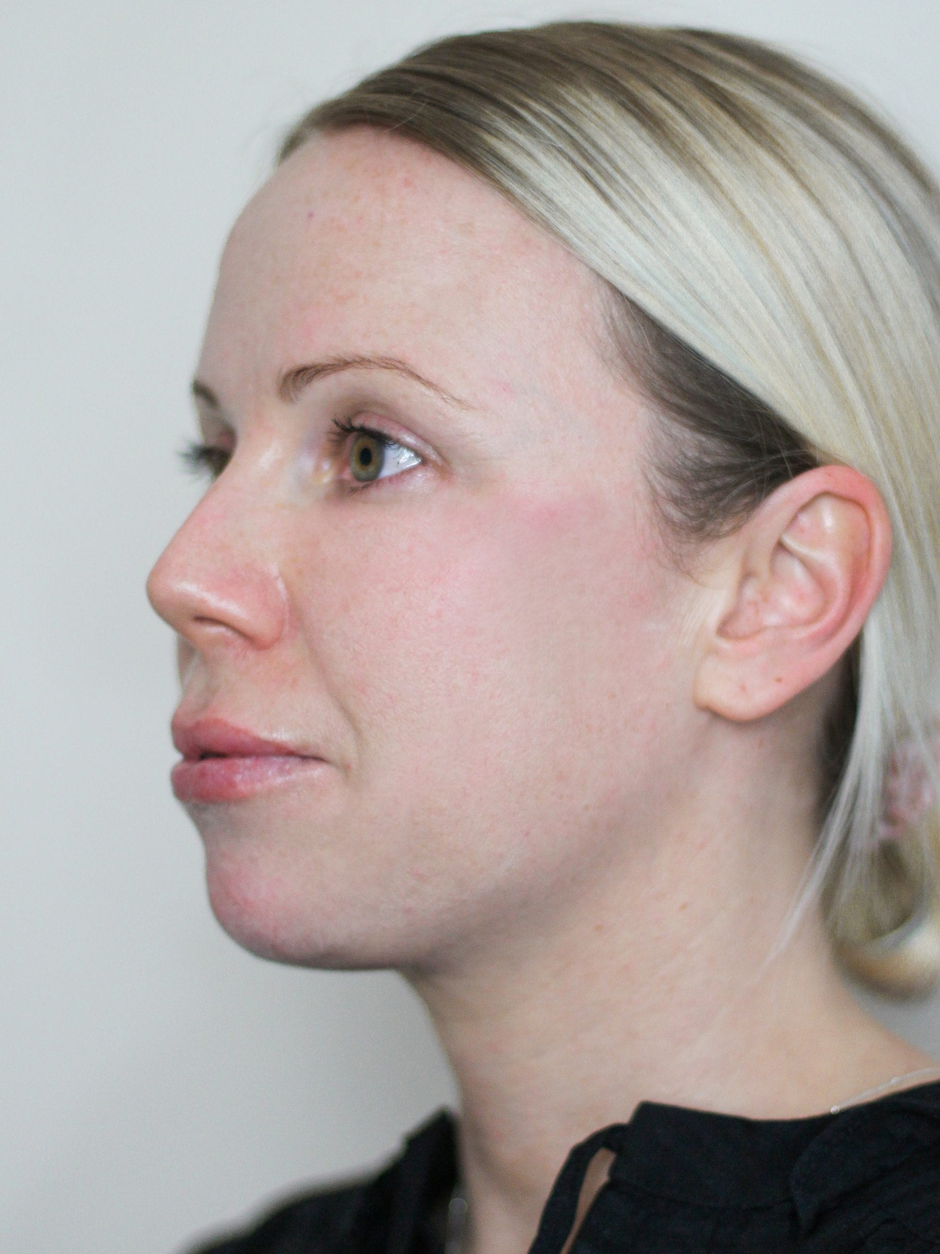 chin augmentation treatment after