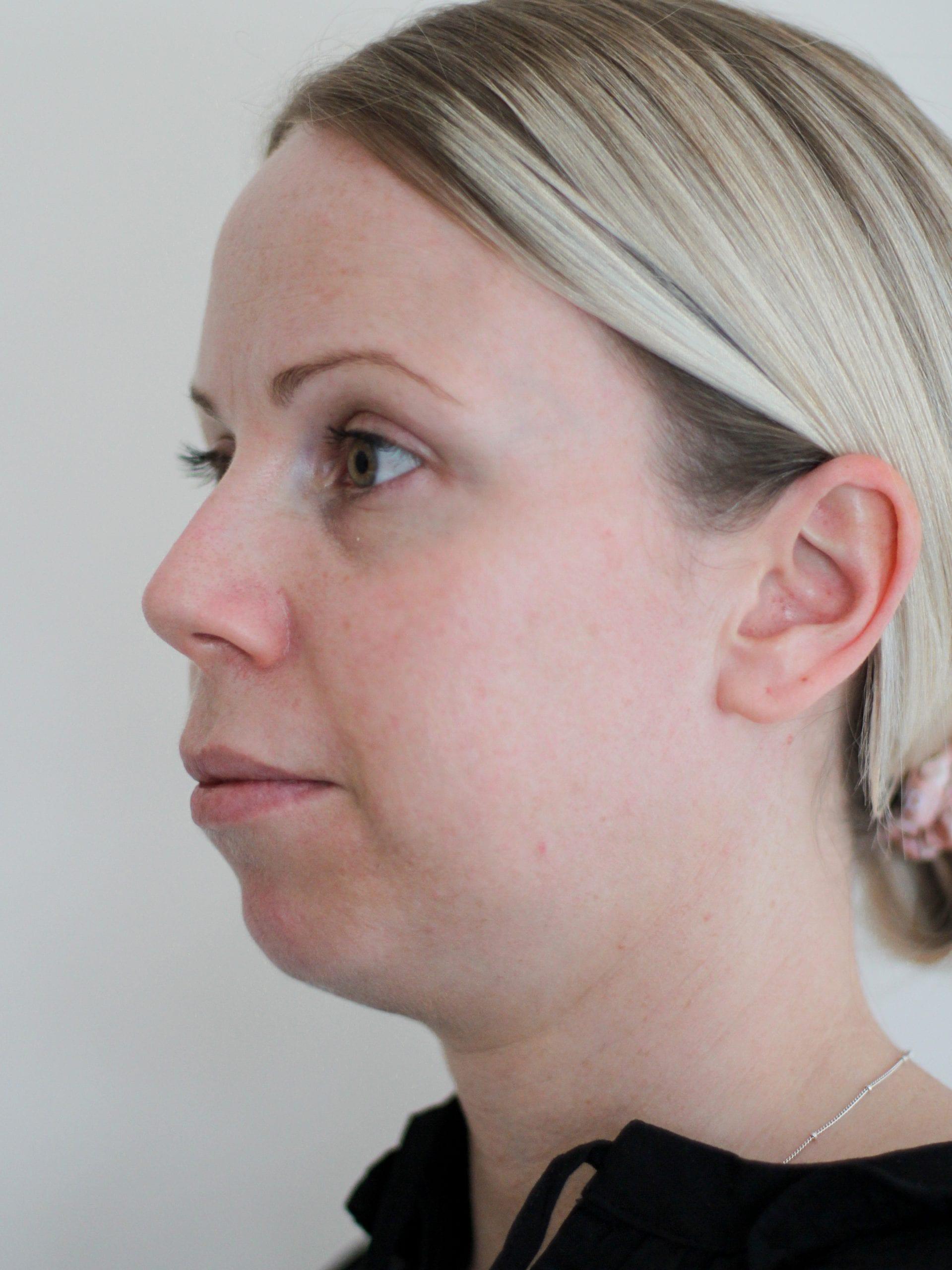 chin augmentation treatment before