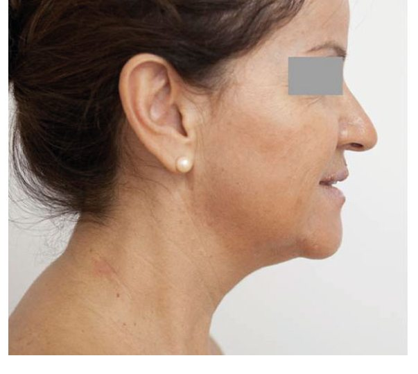 After Profhilo treatment to the face