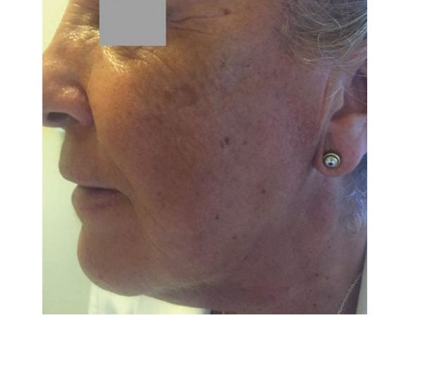 After Profhilo treatment on face