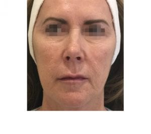 profhilo treatment on face after