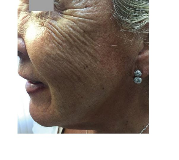 Before Profhilo treatment on face
