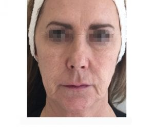 profhilo treatment on face before